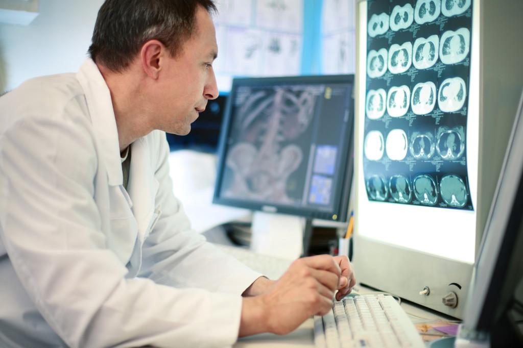 Diagnosing IPF