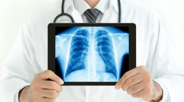 Non-Specific Interstitial Pneumonitis vs. Idiopathic Pulmonary Fibrosis