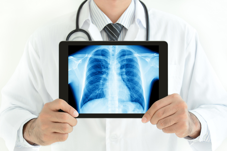 Non Specific Interstitial Pneumonitis Vs Idiopathic